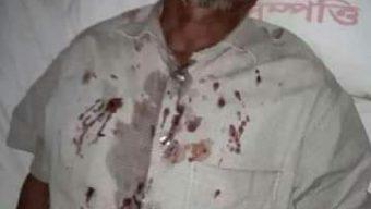 বাঁশখালীতে জমি নিয়ে দু'পক্ষের মারামারি: আহত ৪